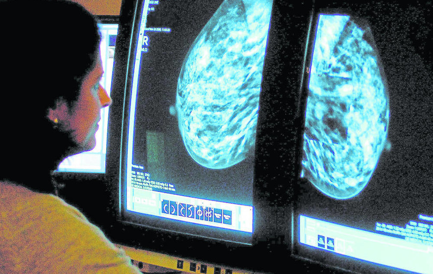 Major breach of breast cancer referral targets
