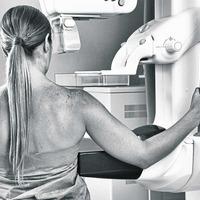 Chance mammogram decision saved my life