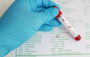 What does it mean to be diagnosed with HIV?